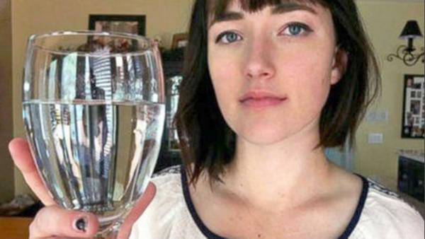 El sufrimiento de una mujer que padece alergia al agua