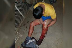 Barrio Belgrano: Entró a robar en la casa de una jubilada y un pitbull le destrozó una pierna