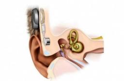 Mar del Plata avanza en soluciones auditivas